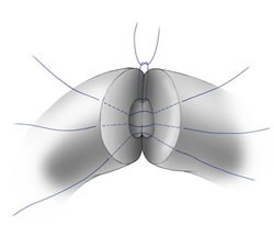 vasectomy reversals