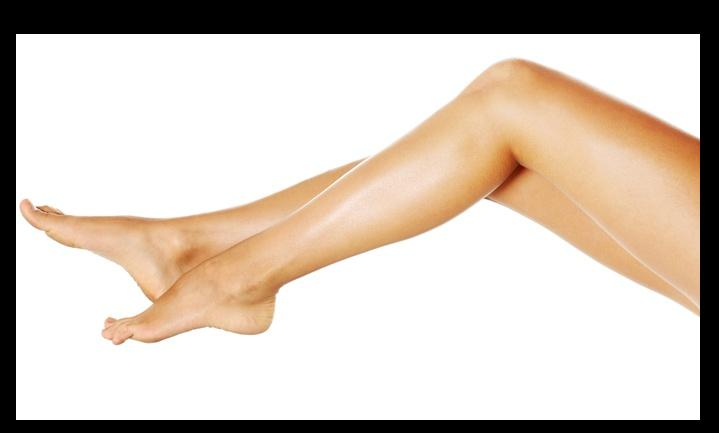 Aging  and Spider Veins