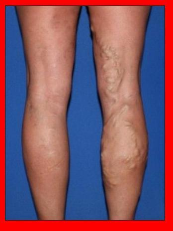 About Varicose Veins