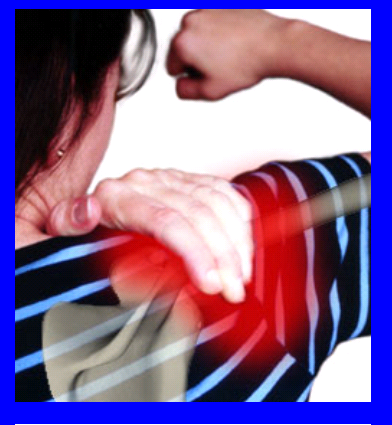 pinched nerve treatment