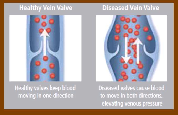 Venous Reflux Disease