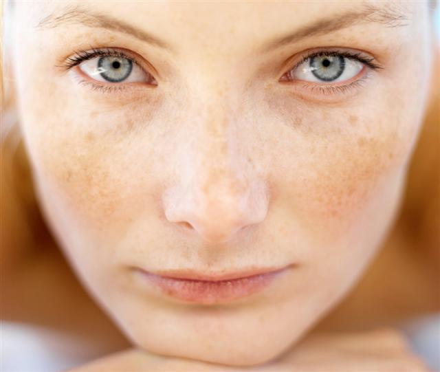 How to Treat Sun Spots
