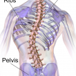 What is Sacroiliitis?