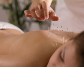 acupuncture needles in girl's back