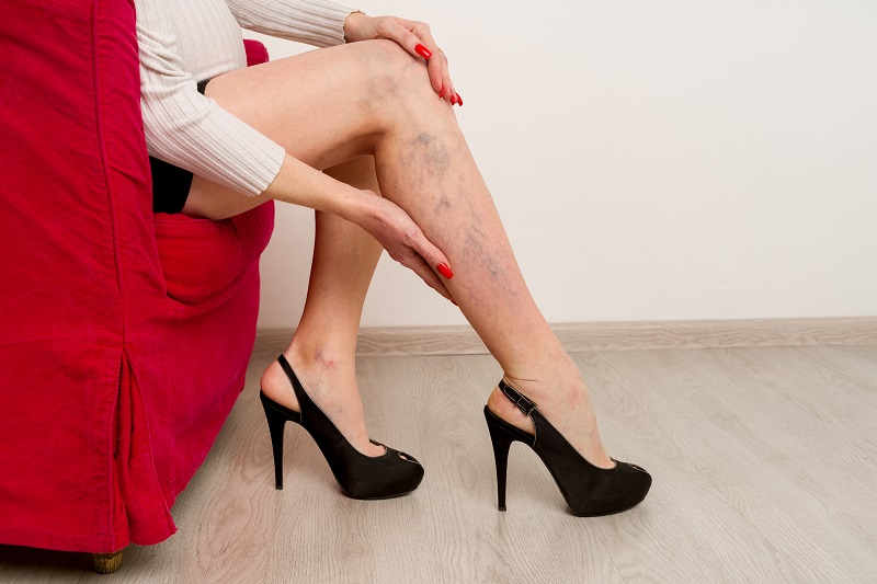 Painful varicose and spider veins on female legs. Woman massaging tired leg